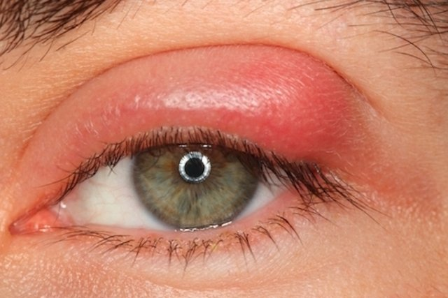 qué enfermedades causan piel muy grasa alrededor de los ojos