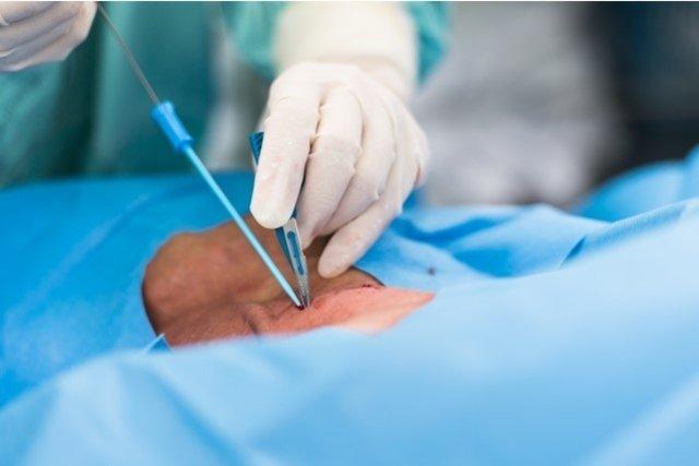 Para que serve o Cateterismo Venoso Central e como é feito