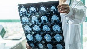 Síndrome de Guillain-Barré: o que é, sintomas, causas e tratamento