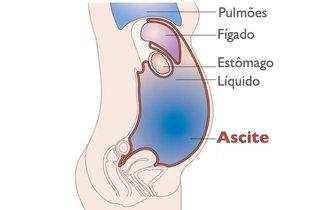 O que é Ascite