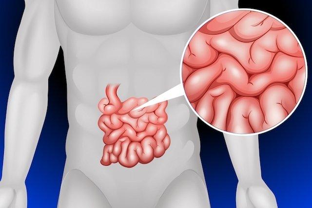 Como é feito o transplante de intestino