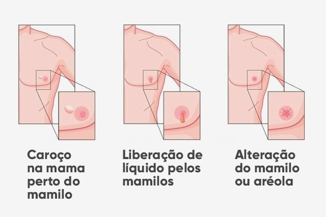 11 Sintomas do câncer de mama