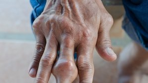 Gout: What Is It, Symptoms, Causes & Treatment Options