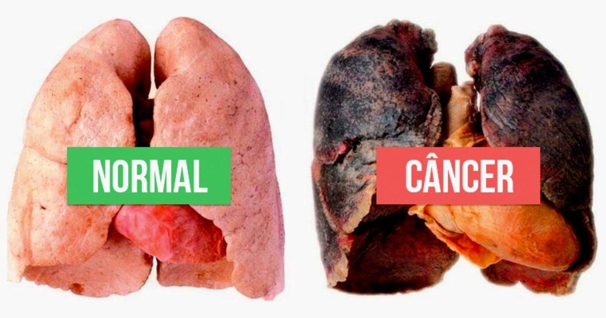 Sintomas de cancer no pulmao