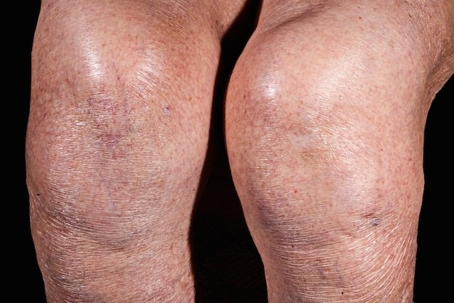 rodilla hinchada con dolor causas