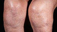 Water on the knee: Symptoms and Treatment Options