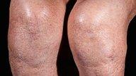 Líquido en la rodilla: síntomas y tratamiento