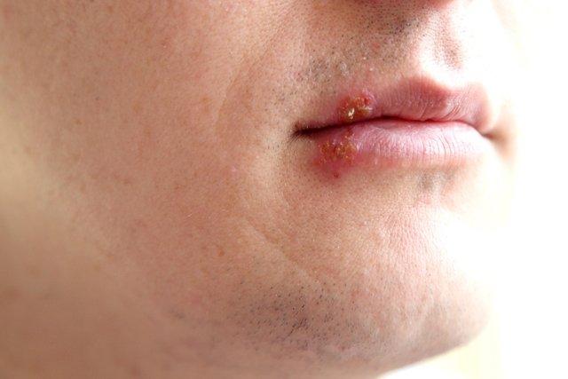 Saiba os sintomas e como tratar o herpes labial