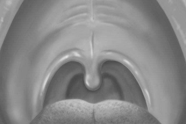 O que pode ser o caroço no céu da boca