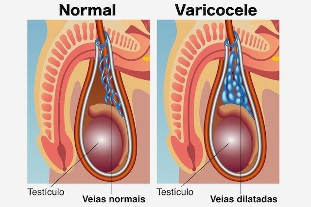 O que é a varicocele e como é feita a cirurgia