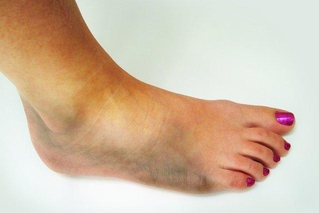 sintomas de dor no pé e inchaço