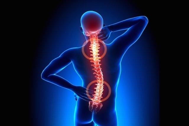 Tratamento para artrose na coluna