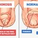 What is phimosis and how to treat it