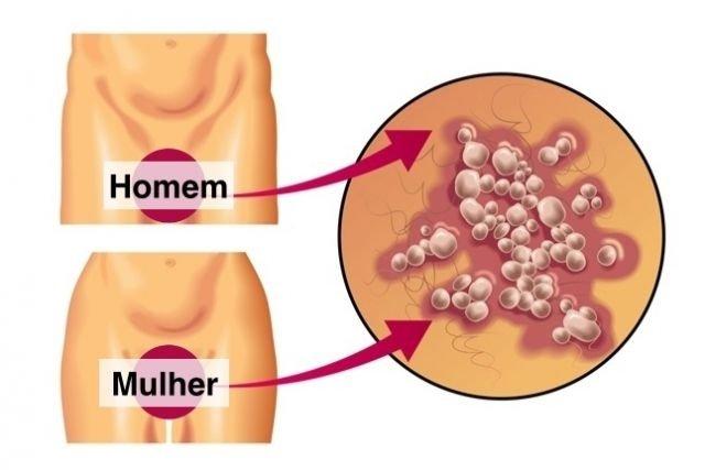 Feridas causadas pela Herpes Genital