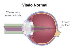 Forma da córnea na visão normal