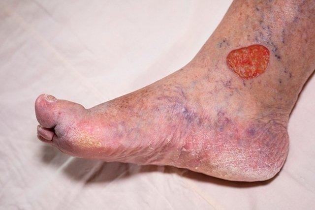O que é ulcera varicosa e como é feito o tratamento