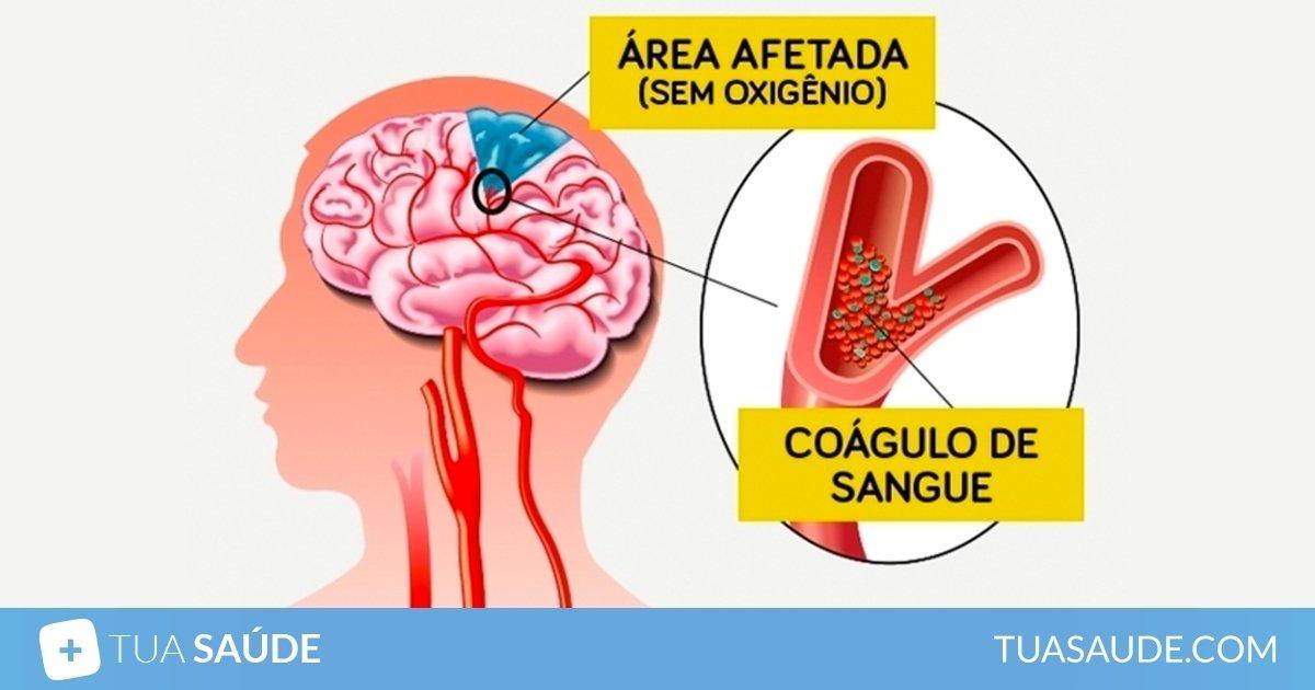 derrame cerebral causas sintomas e tratamentos