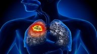 10 Main lung cancer symptoms