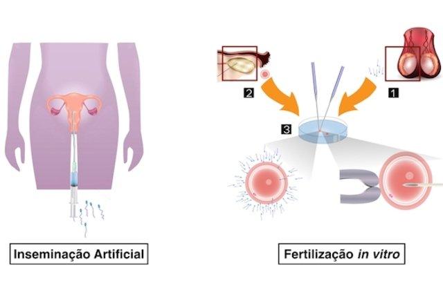 Técnicas de fertilização