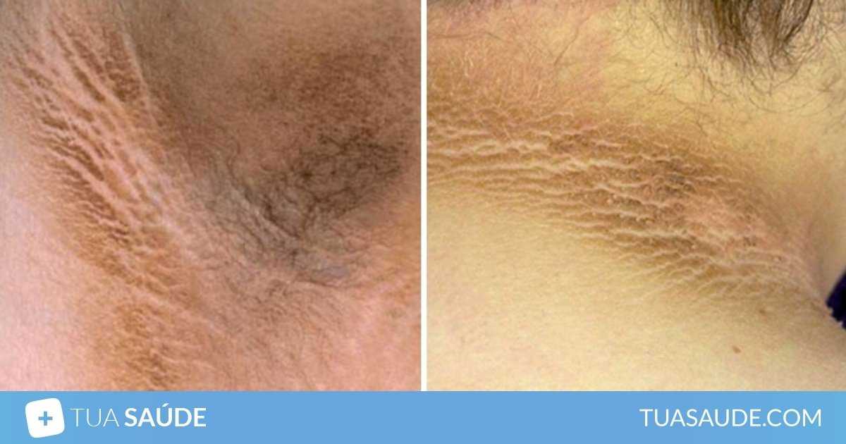 diabetes e manchas na pele tratamento