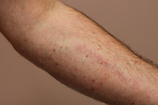Manchas na pele - suspeita de leucemia