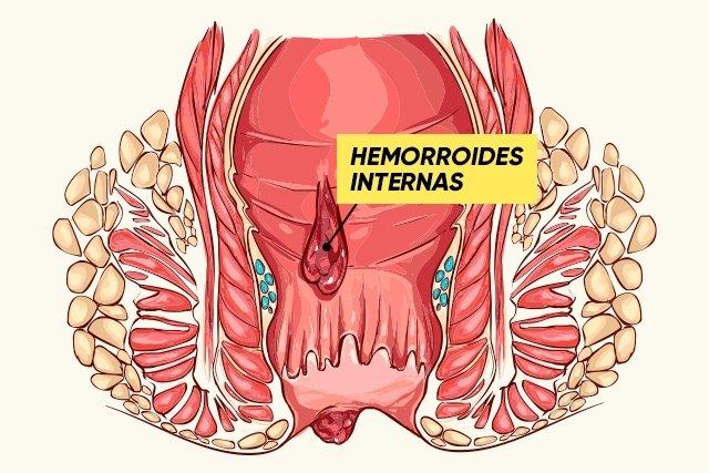 Tratamiento casero para curar las hemorroides tua sa de - Alimentos prohibidos con hemorroides ...