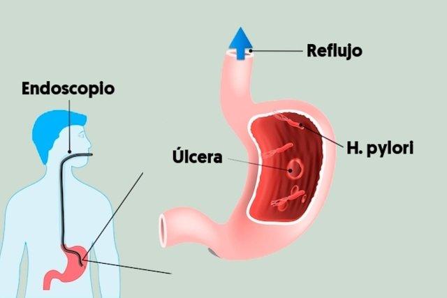 que es una endoscopia digestiva y para que sirve