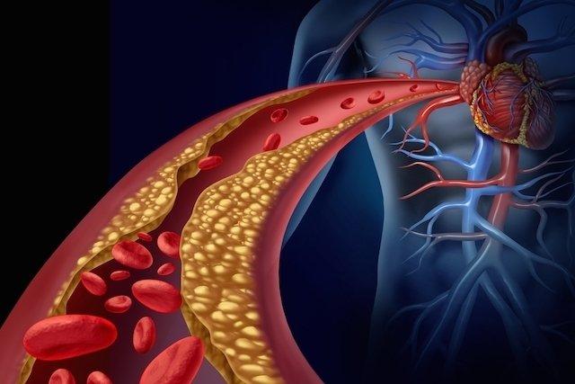 lipidios totais valores normais de diabetes