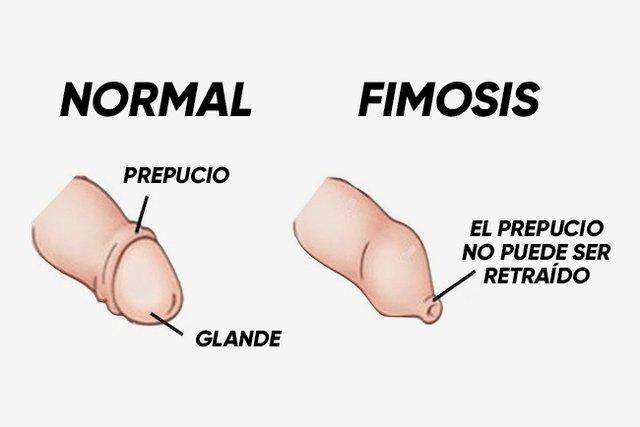 frenillo corto del glande solucion