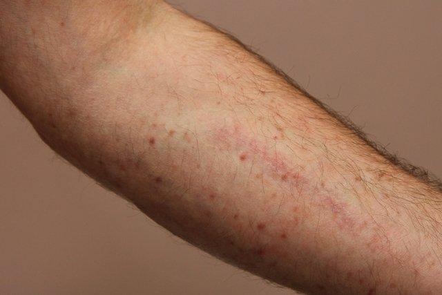 O que é Leucemia, tipos, causas, diagnóstico, tratamento e cura