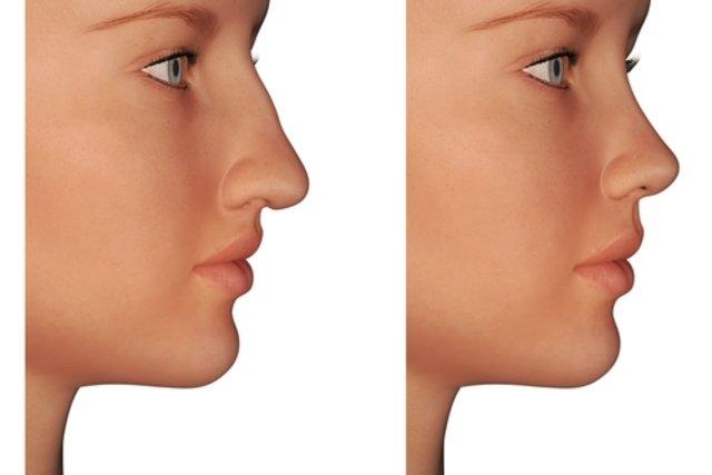 Cirurgia no nariz pode melhorar a auto-estima e a respiração