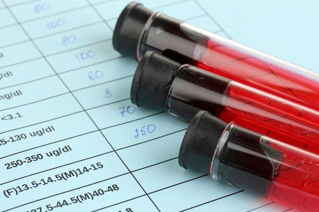 Valores de referência do Hemograma