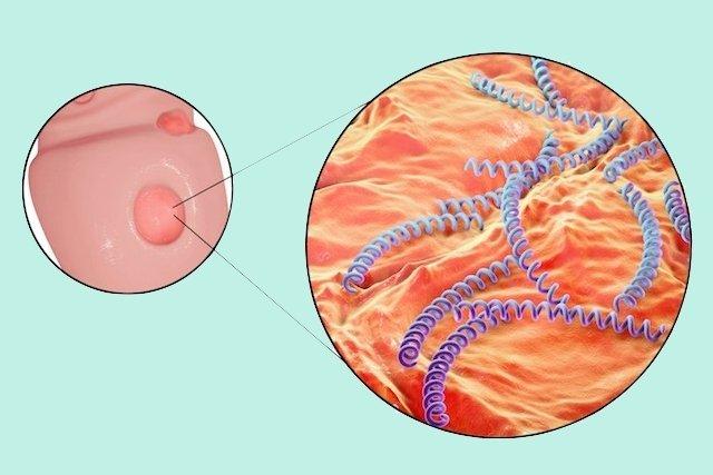 Cancro duro: o que é, sintomas e tratamento
