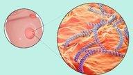 Sífilis - qué es, síntomas, transmisión, prevención y tratamiento