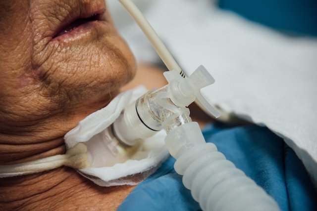 Traqueostomia: O que é e Como cuidar