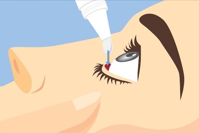Principais colírios para tratar o Glaucoma