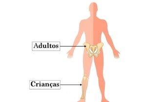 Locais no corpo de onde a medula é retirada