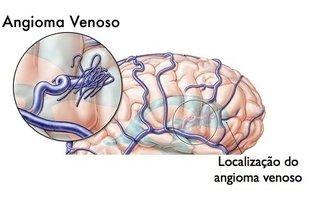 Angioma venoso