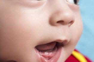 Sintomas do nascimento dos primeiros dentes