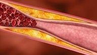 7 sintomas de trombose venosa profunda (TVP)