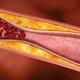 7 Sintomas de Trombose Venosa Profunda