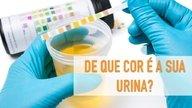 O que pode significar a cor da urina (urina amarela, branca, laranja)