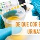 8 Diseases That May Change Urine Color
