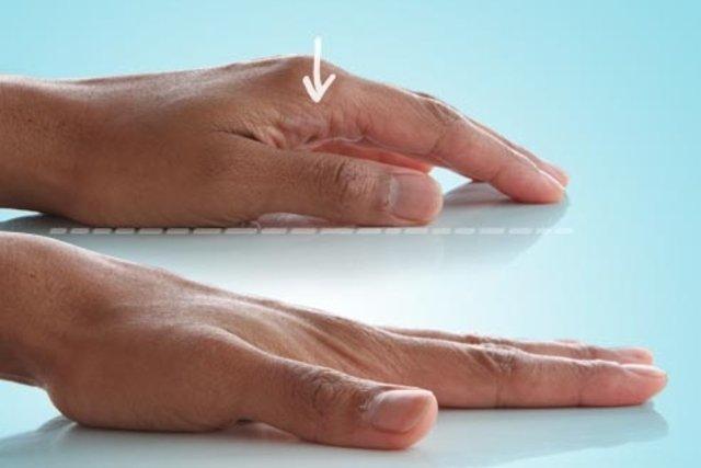 Exercícios para dedo em gatilho
