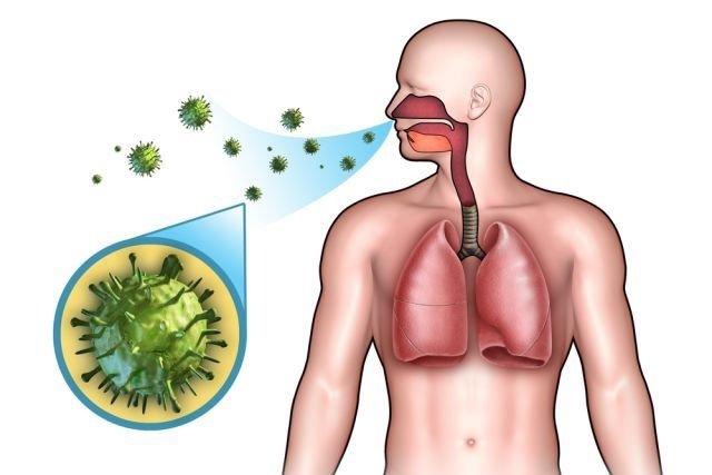 Broncopneumonia: O que é e como tratar