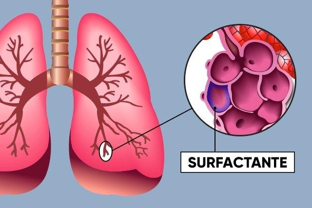 O que é o surfactante pulmonar e como funciona
