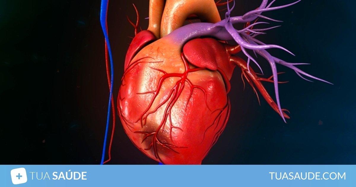 sintomas de infarto fulminante no homem