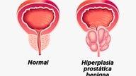 Hiperplasia prostática: Qué es, causas y tratamiento