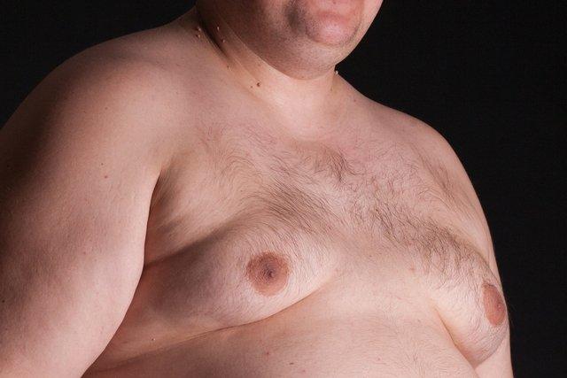 Como tratar a Ginecomastia (aumento da mama no homem)