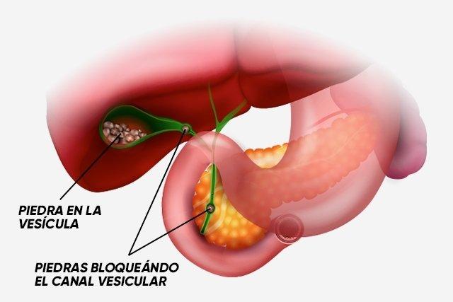 Síntomas de cálculos biliares